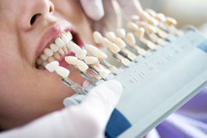 Cosmetic Dentistry at Our International District Dental Clinic